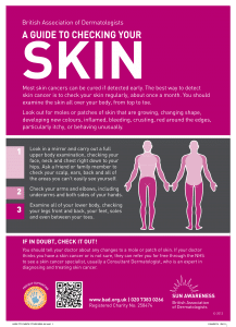 How to check for skin cancer