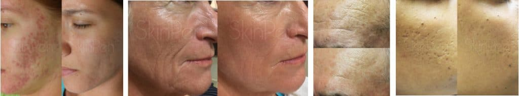 Microneedling by Skin Pen at The Spa Therapy Room