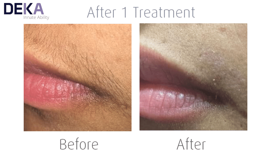 Upperlip Laser Hair Removal at The Spa Therapy Room