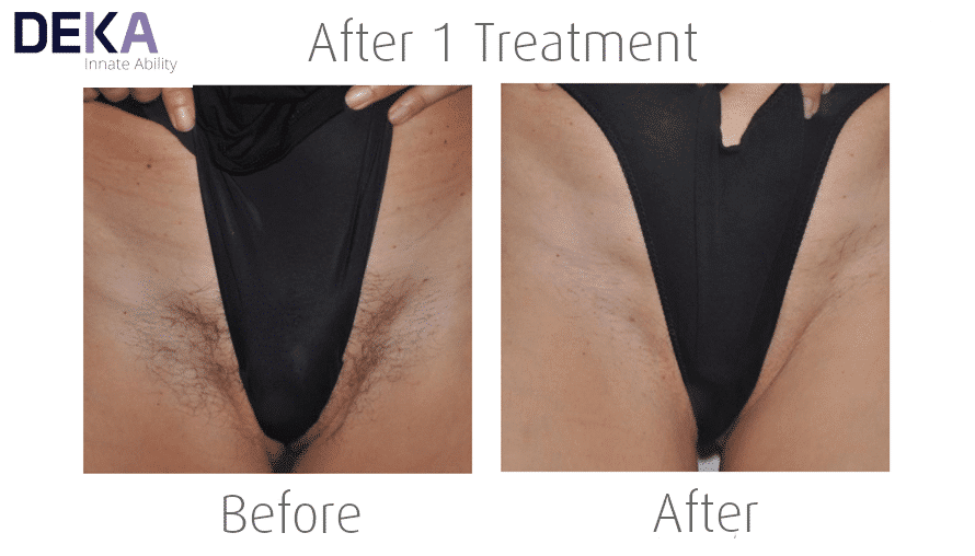 Bikini Laser Hair Removal at The Spa Therapy Room