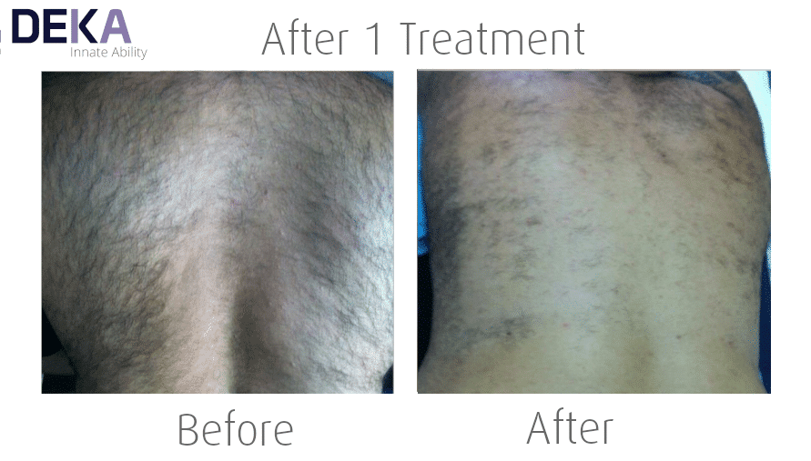 Laser Hair Removal for Men by Deka Motus Laser at The Spa Therapy Room
