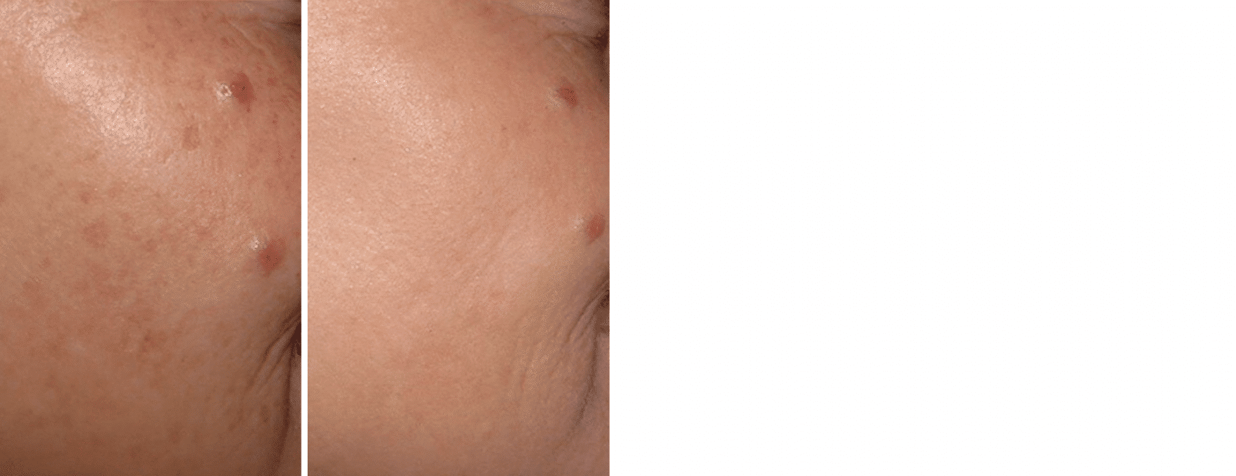illumifacial before and after treatment results